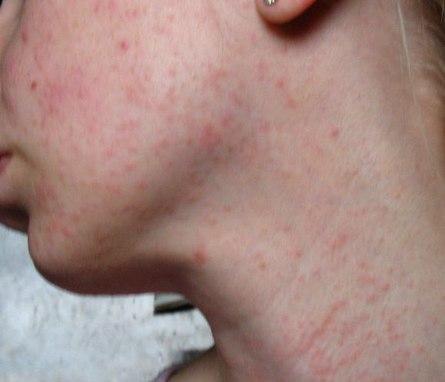 Средство против аллергических высыпаний на коже ребенка