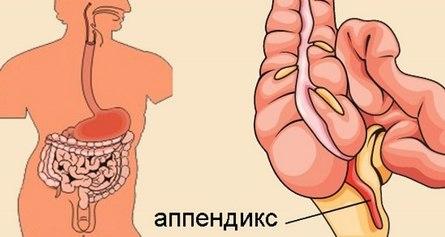 Лечение аппендицита без операции народными средствами